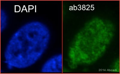 Immunocytochemistry/ Immunofluorescence - Anti-Topoisomerase I antibody - ChIP Grade (ab3825)
