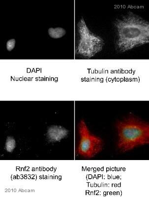 Immunocytochemistry/ Immunofluorescence - Anti-RING2 / RING1B / RNF2 antibody - ChIP Grade (ab3832)