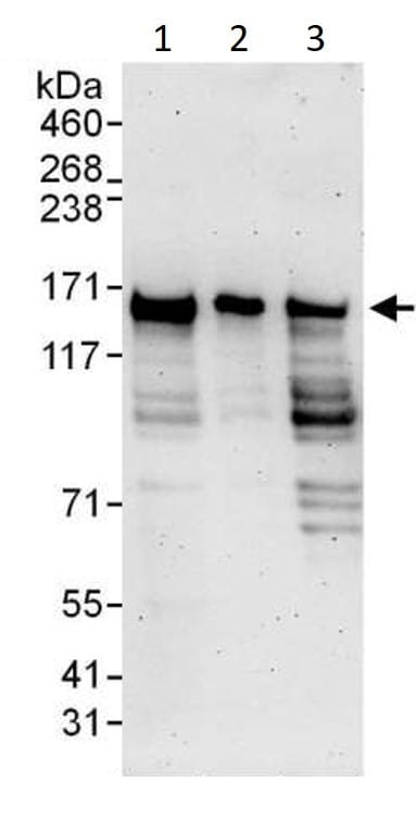 Western blot - Anti-RFC1 antibody (ab3853)