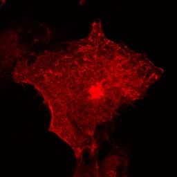 Immunocytochemistry/ Immunofluorescence - Anti-Lck antibody (ab3885)