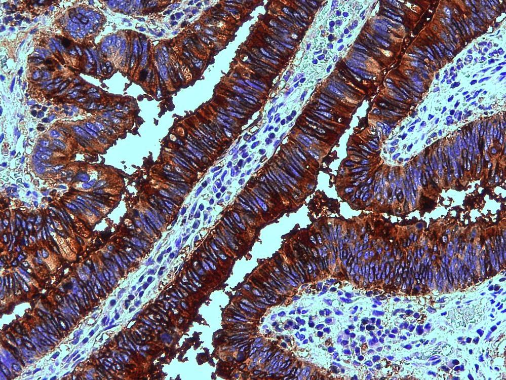 Immunohistochemistry (Formalin/PFA-fixed paraffin-embedded sections) - Anti-Blood Group Lewis b antibody [2-25LE] (ab3968)