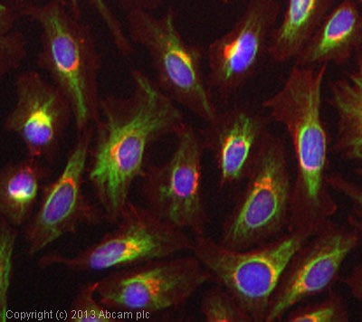 Immunocytochemistry - Anti-Vimentin antibody [VI-RE/1] (ab3974)