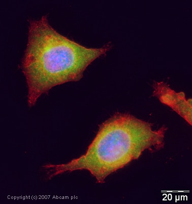 Immunocytochemistry/ Immunofluorescence - Anti-UBE2I / UBC9 antibody (ab30505)