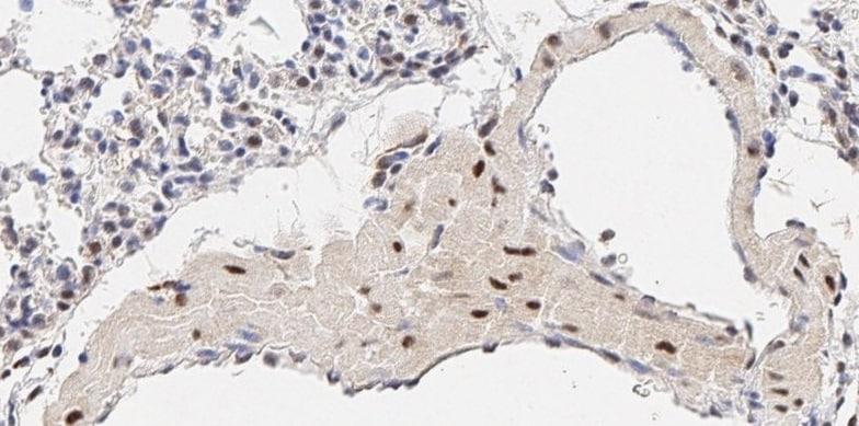 Immunohistochemistry (Formalin/PFA-fixed paraffin-embedded sections) - Anti-LDL Receptor antibody (ab30532)