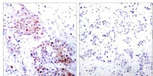 Immunohistochemistry (Formalin/PFA-fixed paraffin-embedded sections) - Anti-MEK2 (phospho T394) antibody (ab30622)