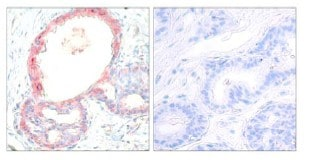 Immunohistochemistry (Formalin/PFA-fixed paraffin-embedded sections) - Anti-c-Rel (phospho S503) antibody (ab30624)