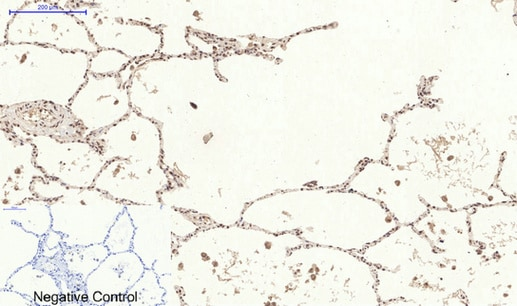 Immunohistochemistry (Formalin/PFA-fixed paraffin-embedded sections) - Anti-STAT3 (phospho S727) antibody (ab30647)