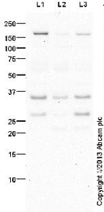 Western blot - Anti-PITX3/PTX3 antibody (ab30734)