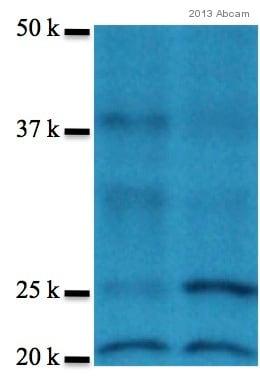Western blot - Anti-PHD3 antibody (ab30782)