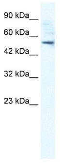 Western blot - Anti-SMPDL3B antibody (ab30912)