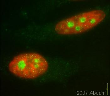 Immunocytochemistry/ Immunofluorescence - Anti-Smg1 antibody (ab30916)
