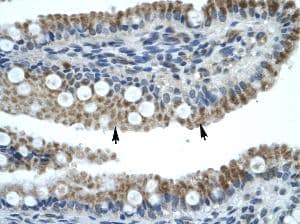 Immunohistochemistry (Formalin/PFA-fixed paraffin-embedded sections) - Anti-ZNF683 antibody (ab30980)