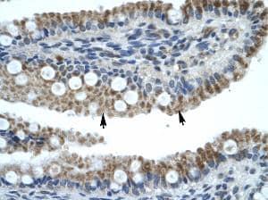 Immunohistochemistry - Anti-ZNF683 antibody (ab30980)