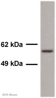 Western blot - Anti-TGF beta Receptor I antibody (ab31013)