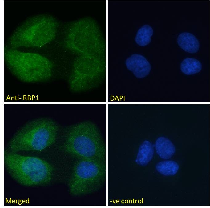 Immunocytochemistry/ Immunofluorescence - Anti-RBP1 antibody (ab31106)