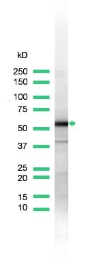 Western blot - Anti-Hsp60 antibody, prediluted (ab31117)