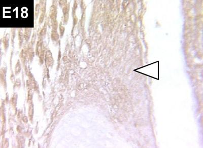 Immunohistochemistry (Formalin/PFA-fixed paraffin-embedded sections) - Anti-LOX antibody (ab31238)