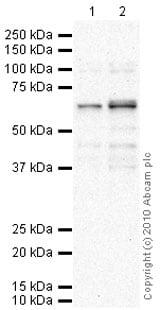 Western blot - Anti-PPM1D/WIP1 antibody (ab31270)