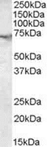 Western blot - Anti-Acetylcholinesterase antibody (ab31276)
