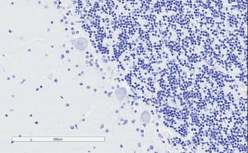 Immunohistochemistry (Formalin/PFA-fixed paraffin-embedded sections) - Anti-SNAP25 antibody (ab31281)