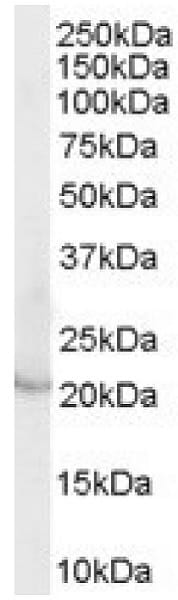 Western blot - Anti-Lipocalin-2 / NGAL antibody (ab31289)