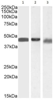 Western blot - Anti-Beta Arrestin 2 antibody (ab31294)