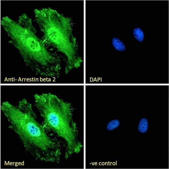 Immunocytochemistry - Anti-Beta Arrestin 2 antibody (ab31294)