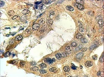 Immunohistochemistry (Formalin/PFA-fixed paraffin-embedded sections) - Anti-SRD5A1 antibody (ab31295)