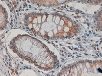Immunohistochemistry (Formalin/PFA-fixed paraffin-embedded sections) - Anti-Asporin antibody (ab31303)