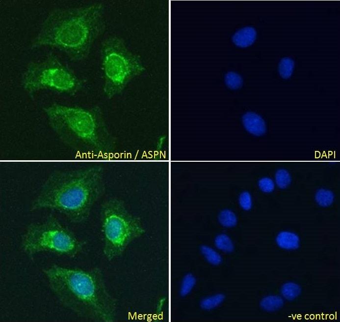 Immunocytochemistry - Anti-Asporin antibody (ab31303)