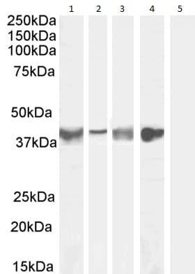 Western blot - Anti-Asporin antibody (ab31303)