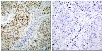 Immunohistochemistry (Formalin/PFA-fixed paraffin-embedded sections) - Anti-p53 antibody (ab31333)