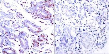 Immunohistochemistry (Formalin/PFA-fixed paraffin-embedded sections) - Anti-STAT1 antibody (ab31369)