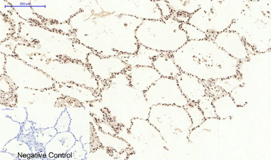 Immunohistochemistry (Formalin/PFA-fixed paraffin-embedded sections) - Anti-STAT3 antibody (ab31370)