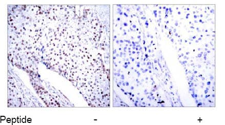 Immunohistochemistry (Formalin/PFA-fixed paraffin-embedded sections) - Anti-STAT3 antibody (ab31370)