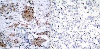 Immunohistochemistry (Formalin/PFA-fixed paraffin-embedded sections) - Anti-Estrogen Receptor alpha (phospho S167) antibody (ab31478)