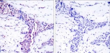Immunohistochemistry (Formalin/PFA-fixed paraffin-embedded sections) - Anti-ATF2 antibody (ab31483)