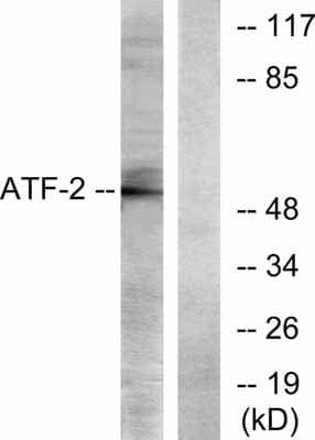 Western blot - Anti-ATF2 antibody (ab31483)