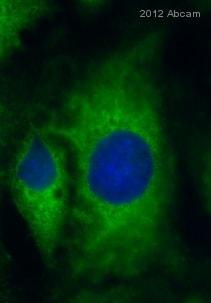 Immunocytochemistry - Anti-Glutamyl Prolyl tRNA synthetase/PARS antibody (ab31531)