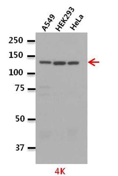 Western blot - Anti-LeuRS antibody (ab31534)