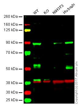 Western blot - Anti-DCAMKL1 antibody (ab31704)