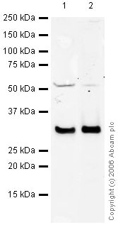 Western blot - Anti-Galectin 3 antibody (ab31707)