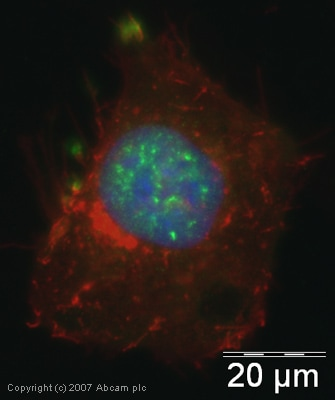 Immunocytochemistry/ Immunofluorescence - Anti-SAP18 antibody (ab31748)