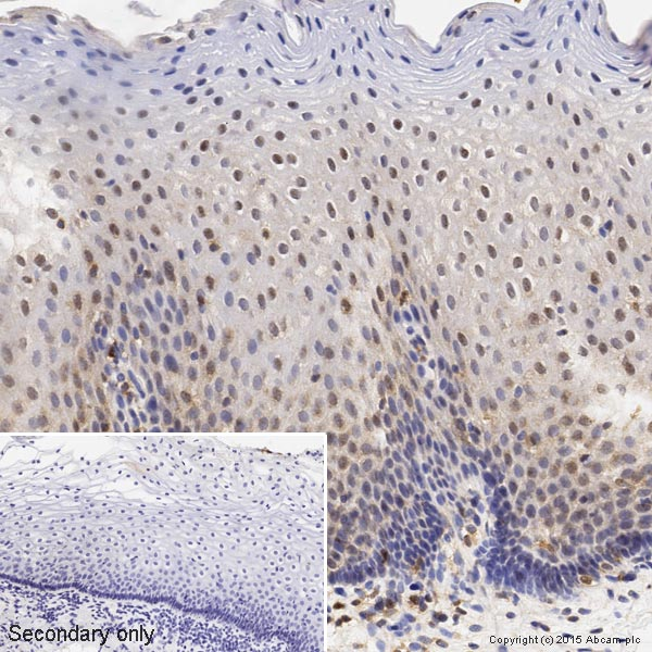 Immunohistochemistry (Formalin/PFA-fixed paraffin-embedded sections) - Anti-p38 antibody [M138] (ab31828)