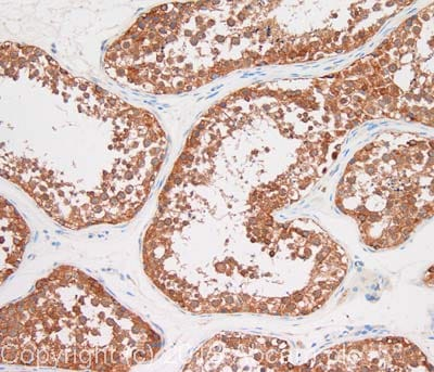 Immunohistochemistry (Formalin/PFA-fixed paraffin-embedded sections) - Anti-BCAR1 antibody [M144] (ab31831)