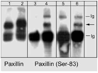 Western blot - Anti-Paxillin (phospho S83) antibody (ab31833)