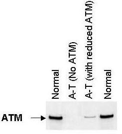Western blot - Anti-ATM antibody [ATM 11G12] (ab31842)