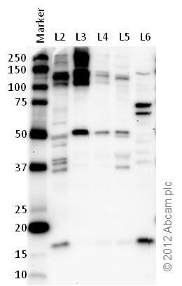 Western blot - Anti-Rad6 antibody (ab31917)