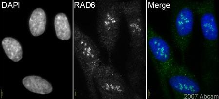 Immunocytochemistry/ Immunofluorescence - Anti-Rad6 antibody (ab31917)