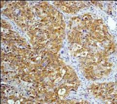 Immunohistochemistry (Formalin/PFA-fixed paraffin-embedded sections) - Anti-CrkL antibody [Y244] (ab32018)
